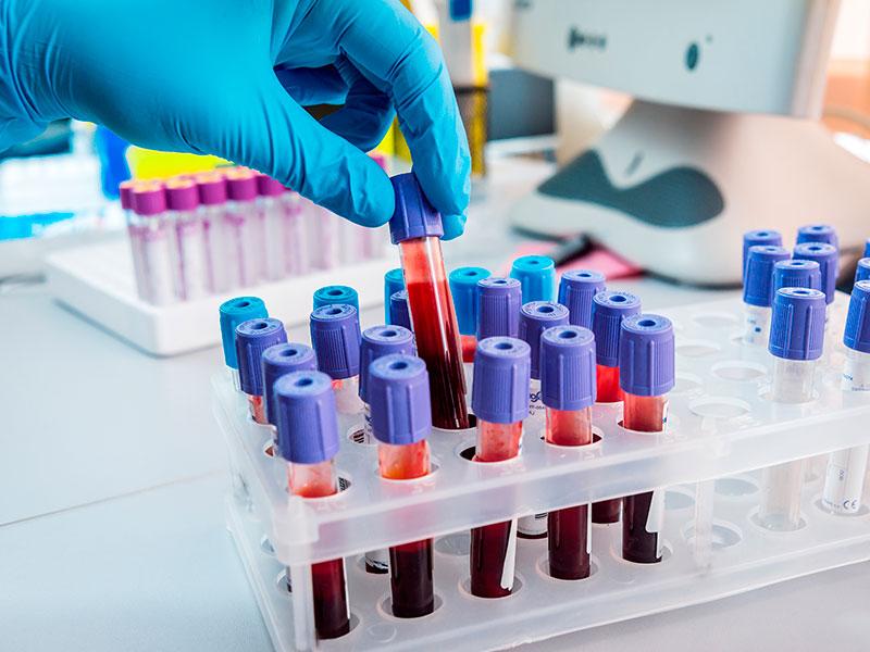 Exame de sangue pode salvar vida de pacientes com câncer de mama